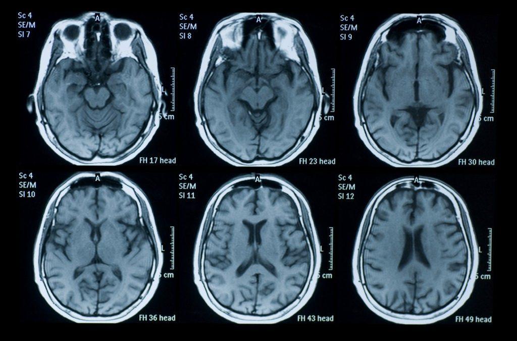 happiness brain scan